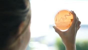 Biofertilizantes: qué son y cómo se aplican, con la explicación de un especialista